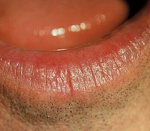 lip fissure 2